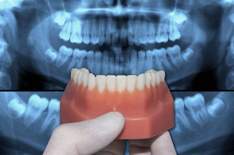 Можно ли протезировать зубы при пародонтозе
