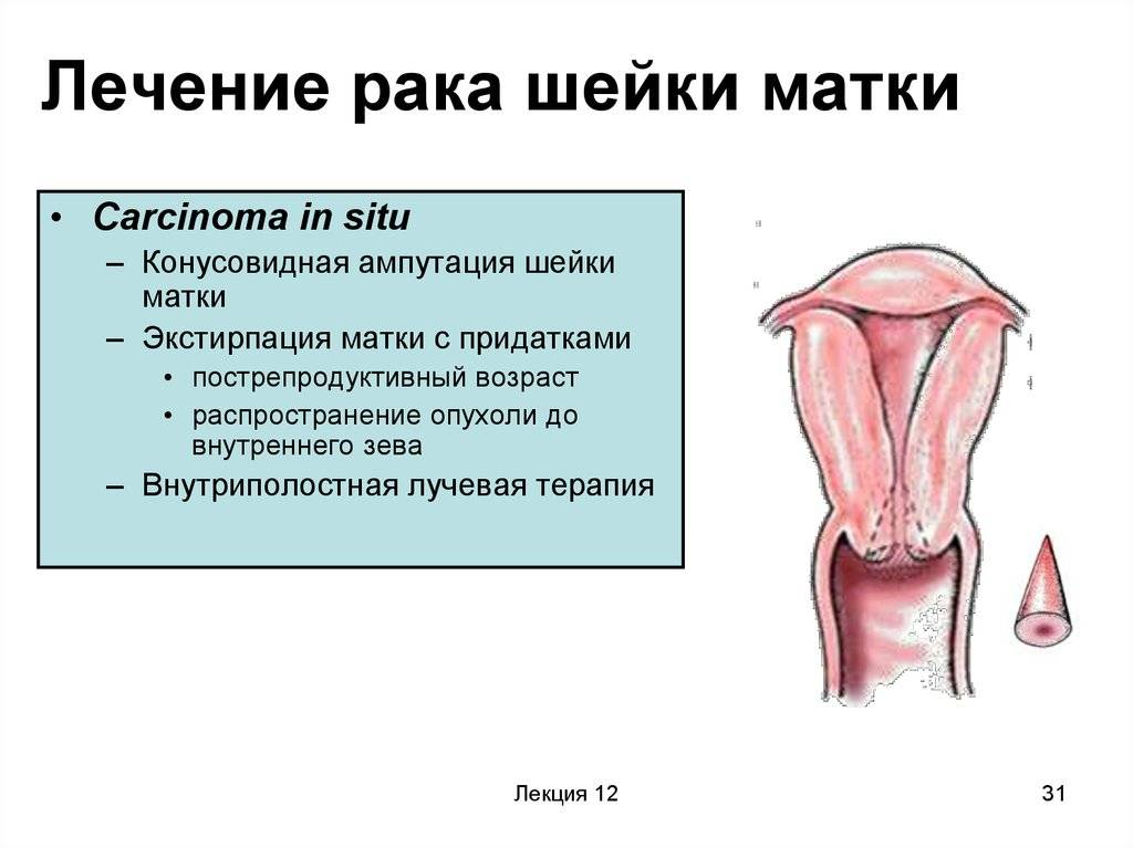 Всё о раке шейки матки 4 (четвертой) стадии