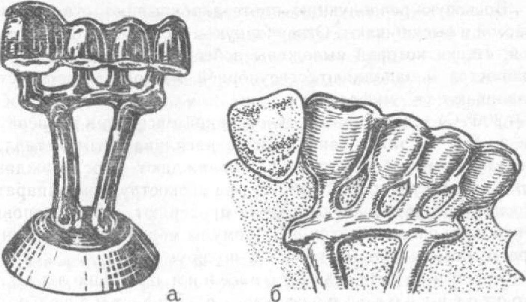 Цельнолитые мостовидные протезы — этапы изготовления литого протезирования