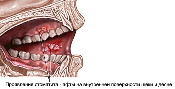 Язвенно-некротический стоматит (гингивостоматит)