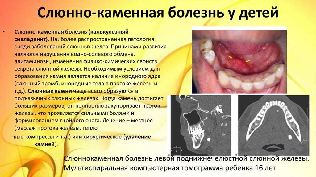 Слюннокаменная болезнь: симптомы и лечение камней в слюнной железе, удаление камня