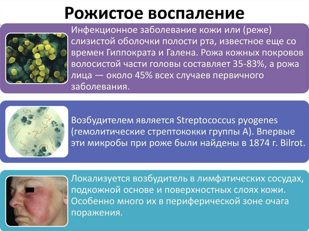 Рожистое воспаление или рожа