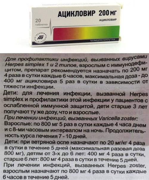 Как пить таблетки ацикловир от герпеса: дозировки, особенности лечения