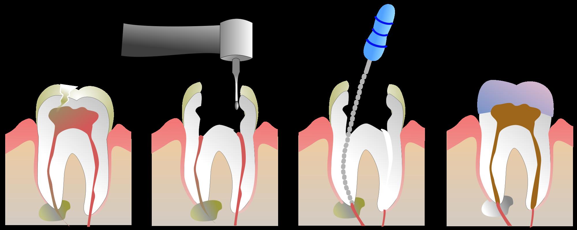 Оглавление методы пломбирования корневых каналов способы пломбирования корневых каналов пломбирование корневого канала штифтами в комбинации с заполнителем. - презентация