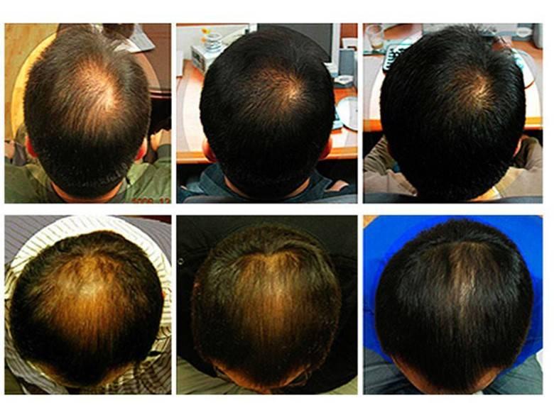 Как выбрать мезороллер для улучшения роста волос