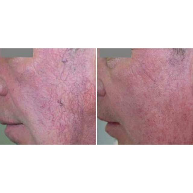 Лечение сосудистых звездочек на лице методом лазерной коагуляции