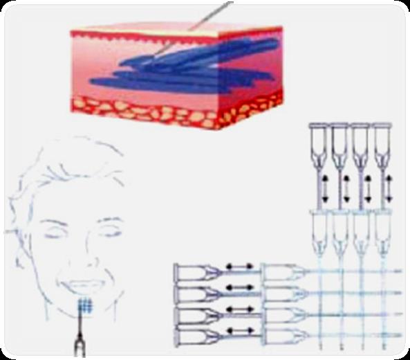 Биоревитализация для лица. методики, этапы курса, особенности процедуры