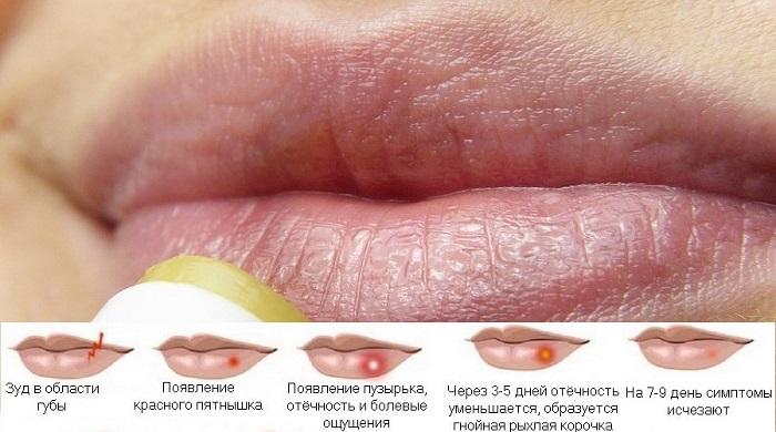 Прыщи на губе или герпес, в чем отличия, профилактика и лечение прыщей