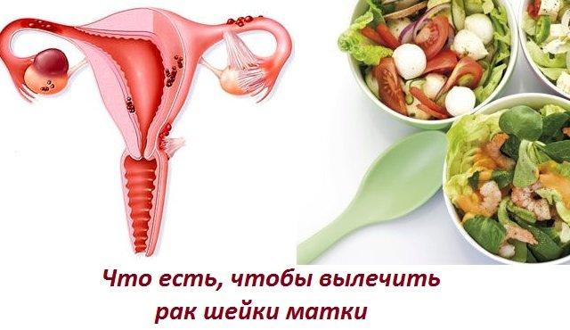 Питание и диета при эндометриозе.