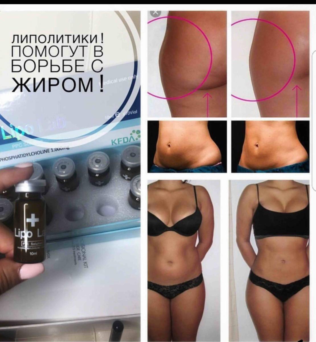 Как применяются липолитики для похудения