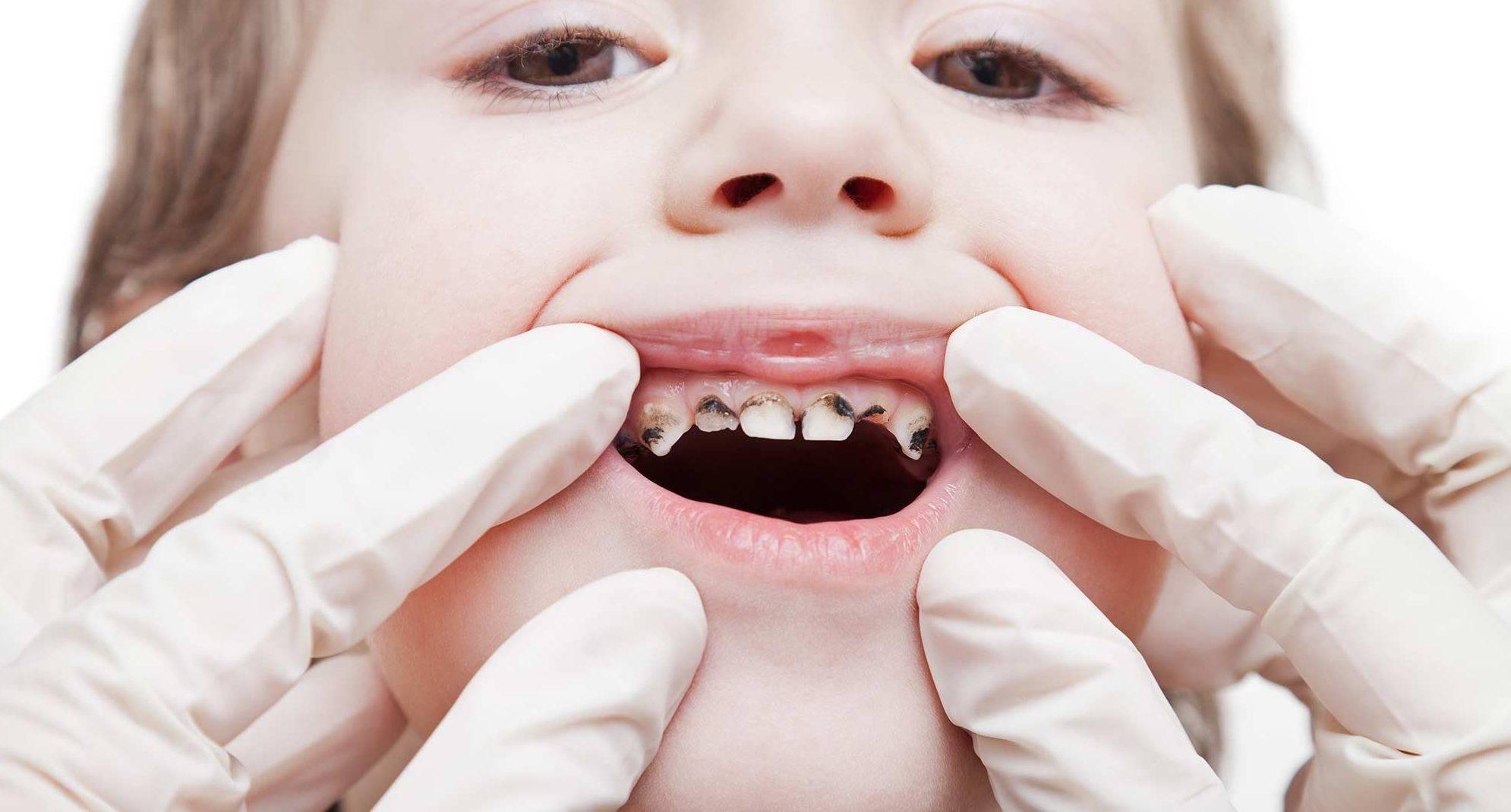 Афтозный стоматит у детей — как лечить