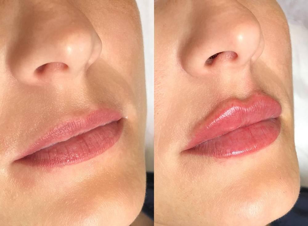 Формы губ в зависимости от техники увеличения
