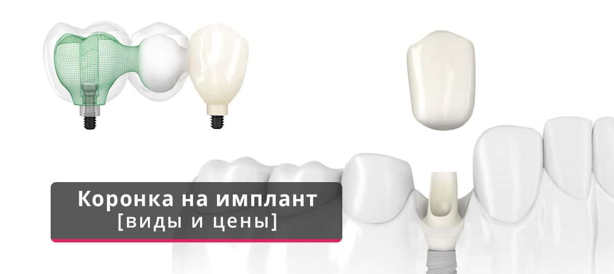 Что лучше выбрать: коронку или имплант?