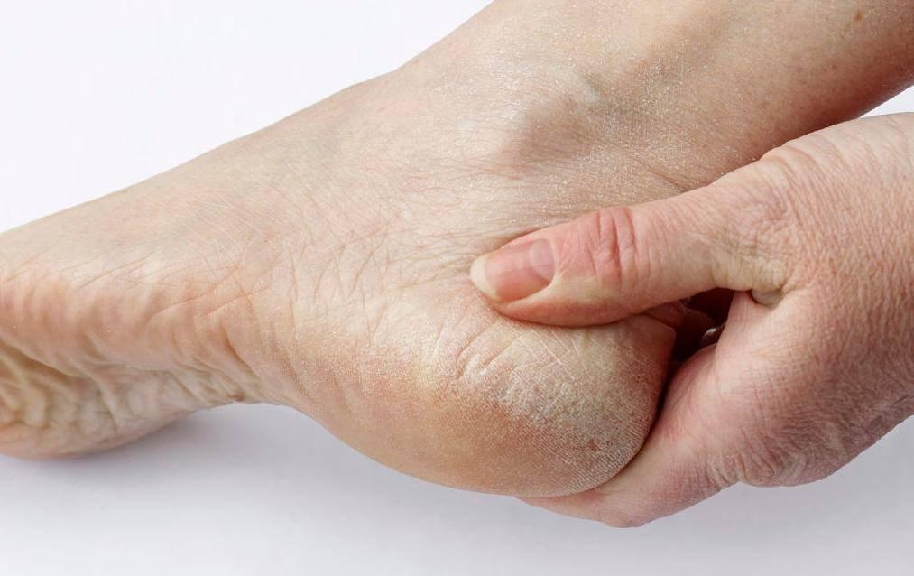 Сухая кожа на ногах: причины