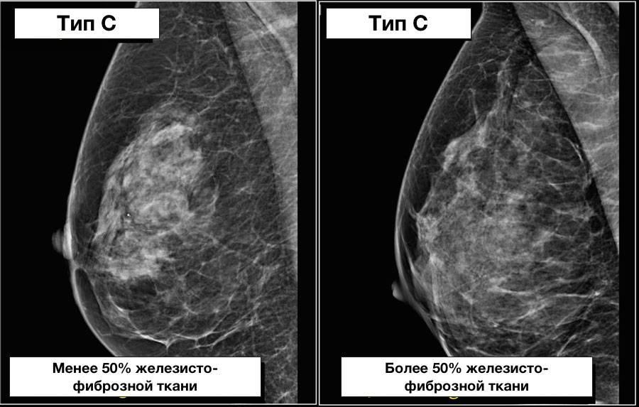 Фиброзные изменения молочной железы: признаки и лечение