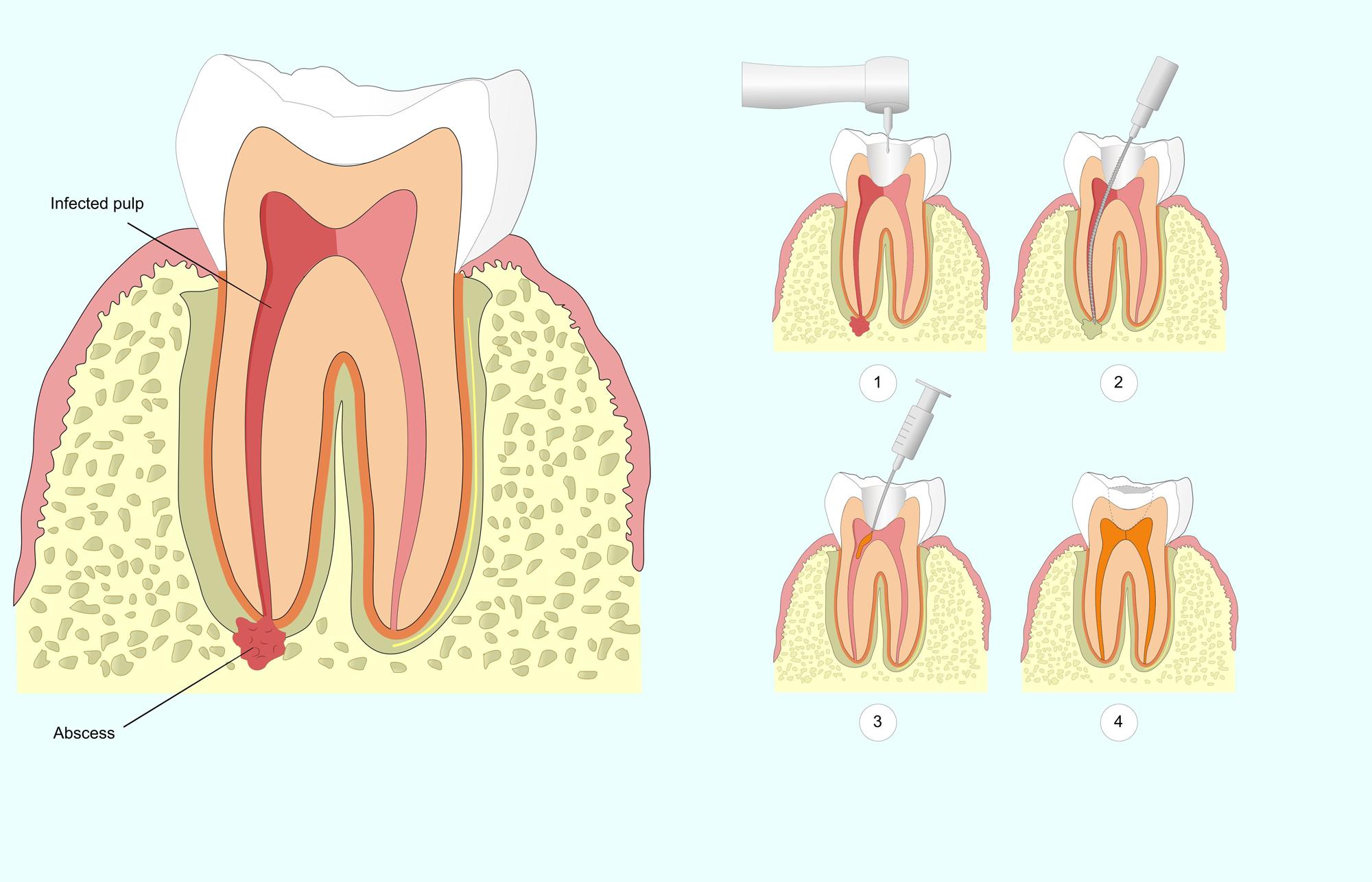 Гнойник на десне после удаления зуба