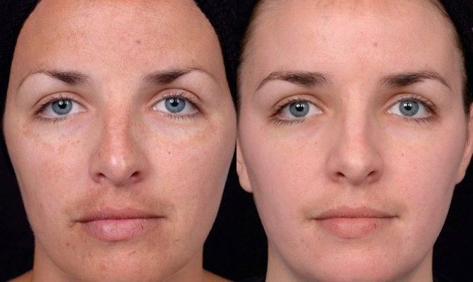 Атравматическая чистка лица – на сколько эффективен данный метод?