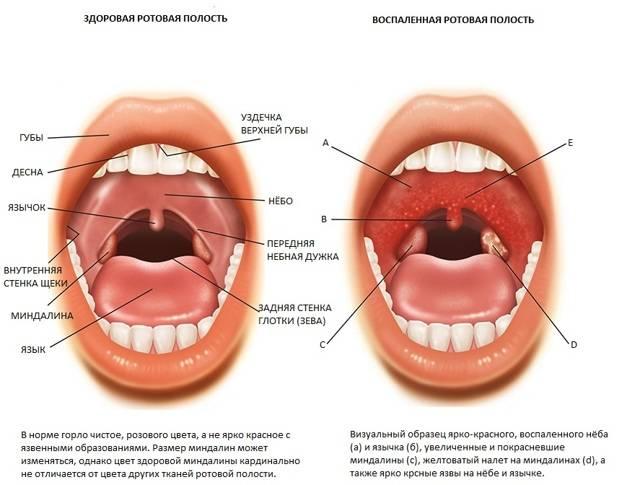 Неприятный запах изо рта при ангине
