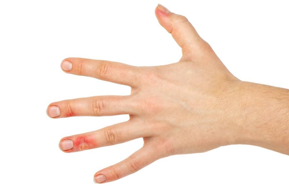 Как лечить и что делать, если появился волдырь? различные методы и средства