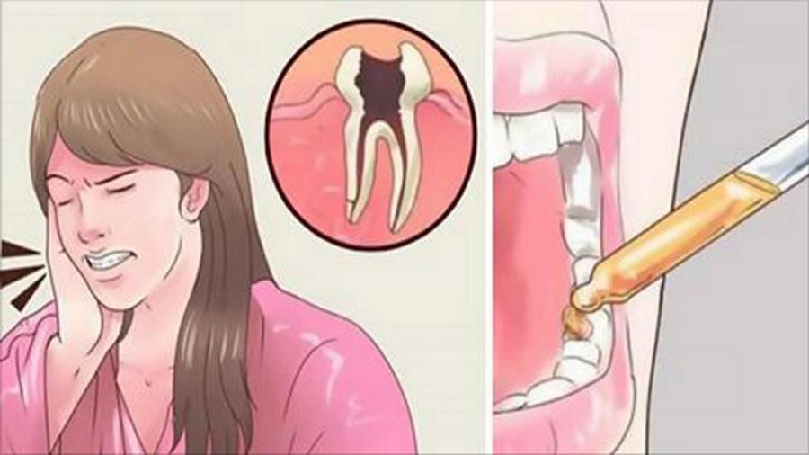 Чем успокоить зубную боль в домашних условиях быстро без таблеток