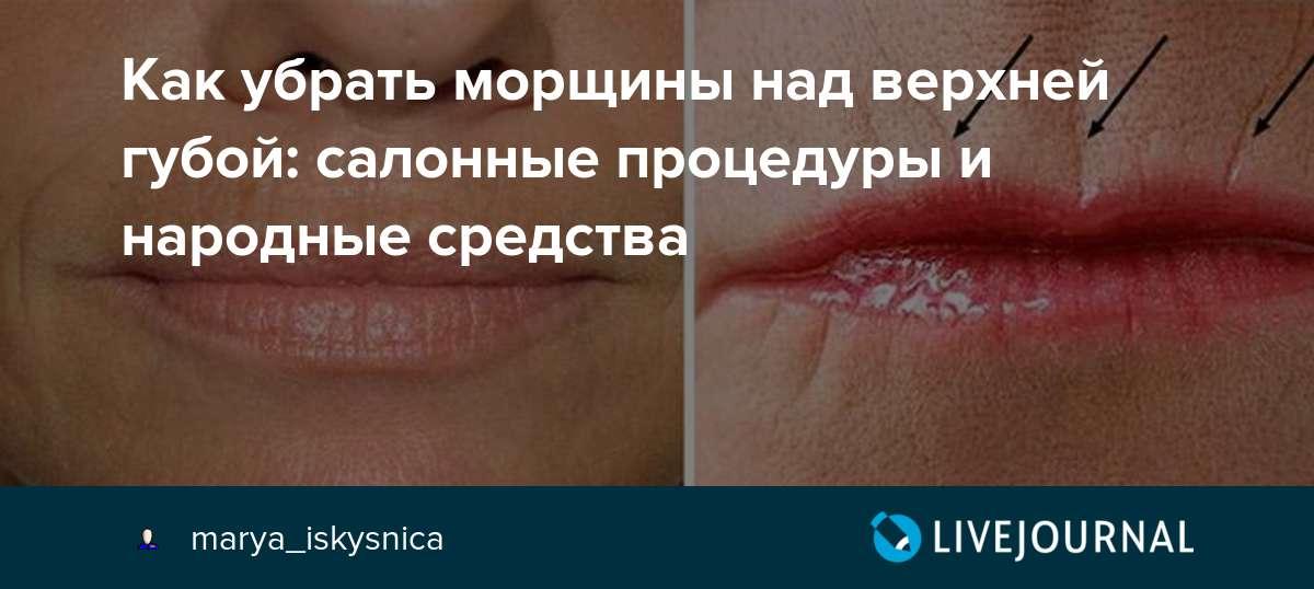 Как убрать морщины над верхней губой – советы и рецепты