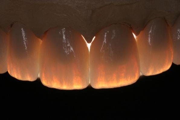 После лечения глубокого кариеса зуб реагирует на холодное и горячее и болит