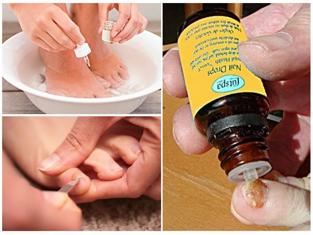 Масло чайного дерева от грибка ногтей. как использовать в чистом виде, в смесях и ванночках