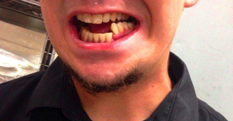 Признаки перелома челюсти — фото
