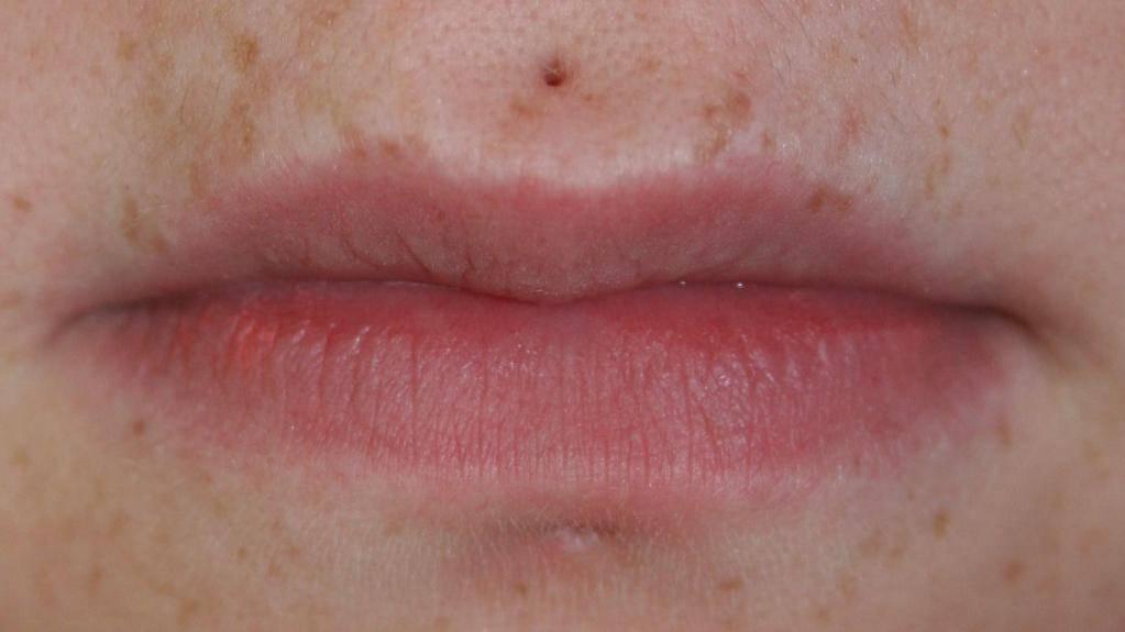 Черная точка на губе. что делать с чёрной точкой на губе?