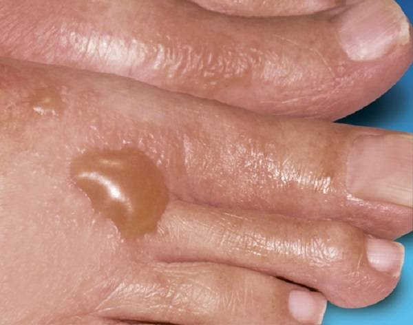 Буллезный дерматит : особенности патологии, характерные признаки, лечение