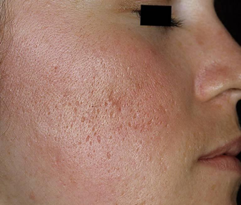 Атрофические рубцы на лице – причины образования и основные методы лечения