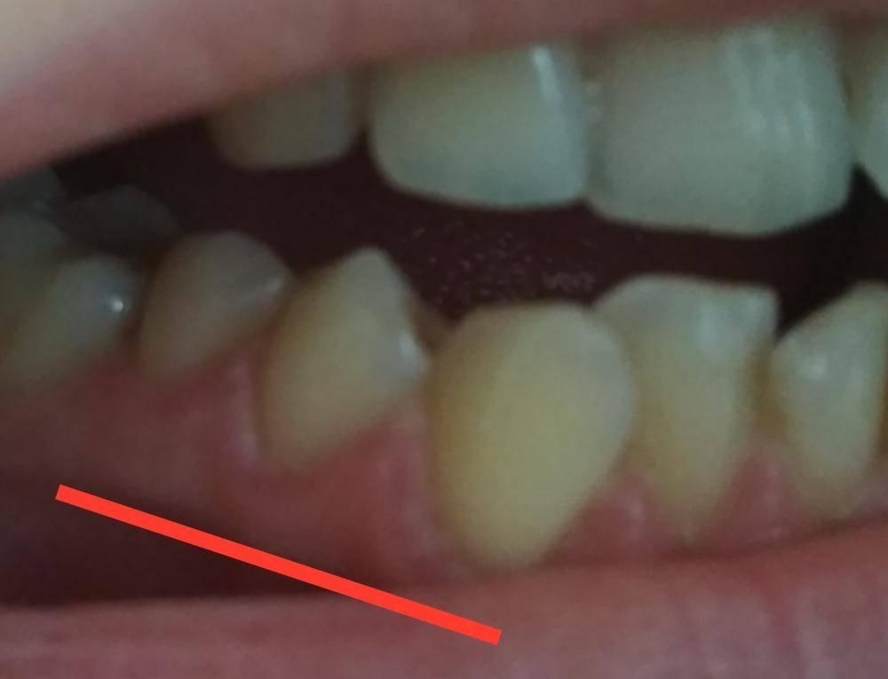 Болит здоровый зуб при нажатии на него