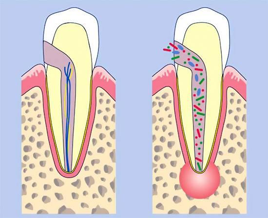 Болит нерв в зубе: что делать, как быстро унять боль