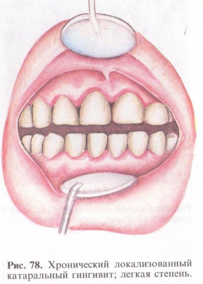 Лечение гипертрофического гингивита. чем фиброзная форма отличается от отёчной