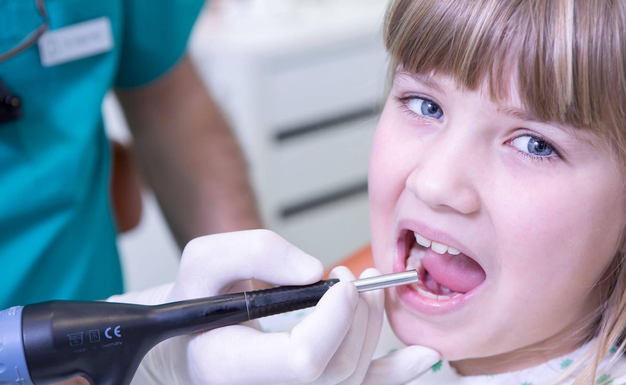 Дырочки в зубах в детстве — серьезные проблемы в юности. к каким нарушениям может привести не вылеченный кариес молочных зубов у ребенка?