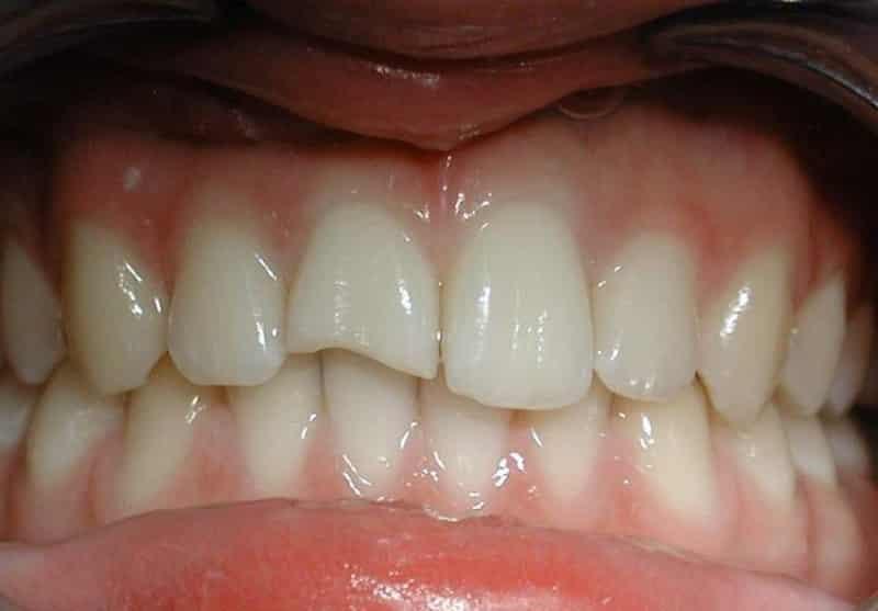 Что означает сломанный зуб у взрослого и ребенка – народные приметы, значение, возможные объяснения