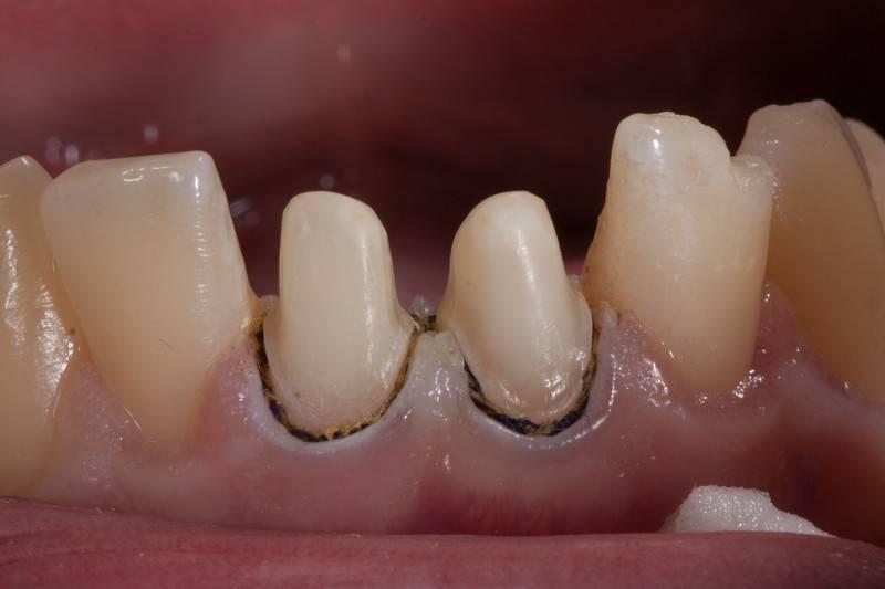 Почему в дырке или между зубами выросла десна — что делать и как это лечить?