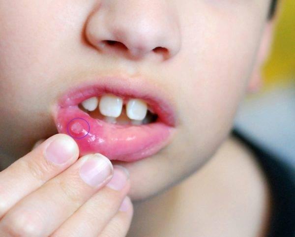 Как выглядит стоматит у взрослых на языке: фото. какими средствами его вылечить?