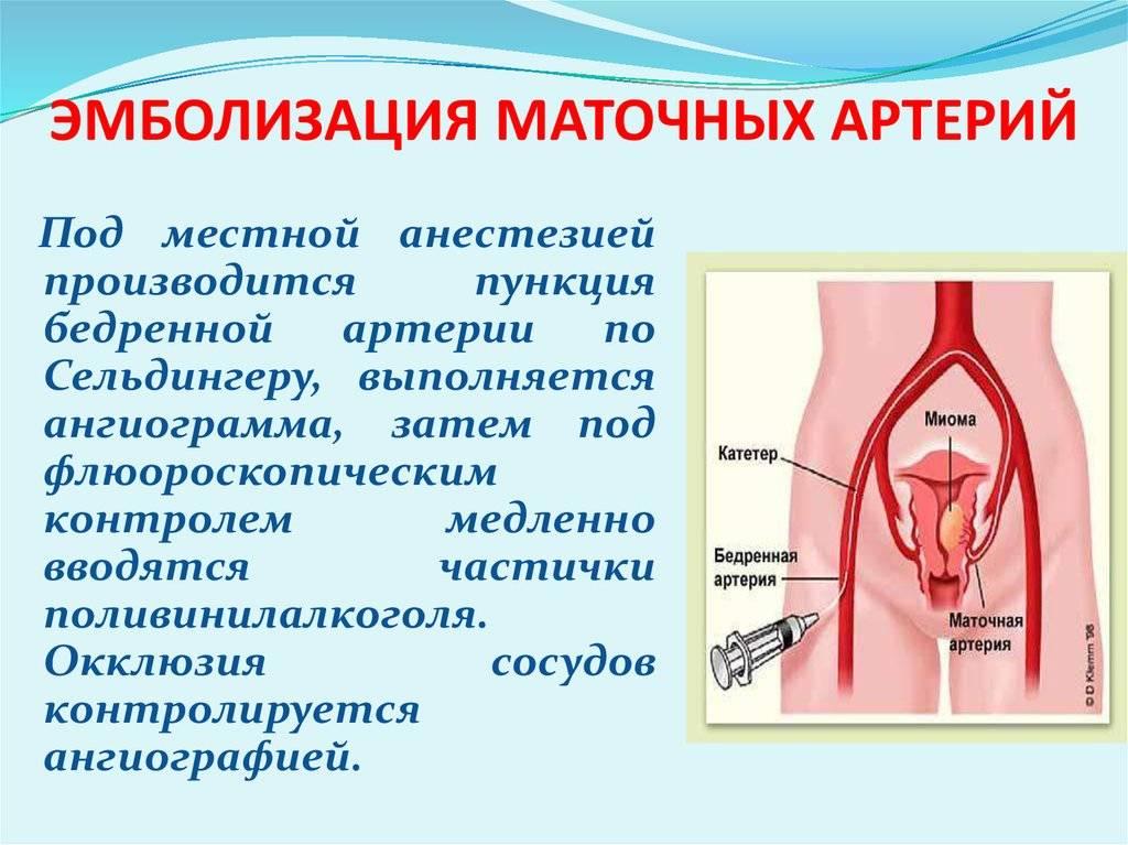Эмболизация миомы матки