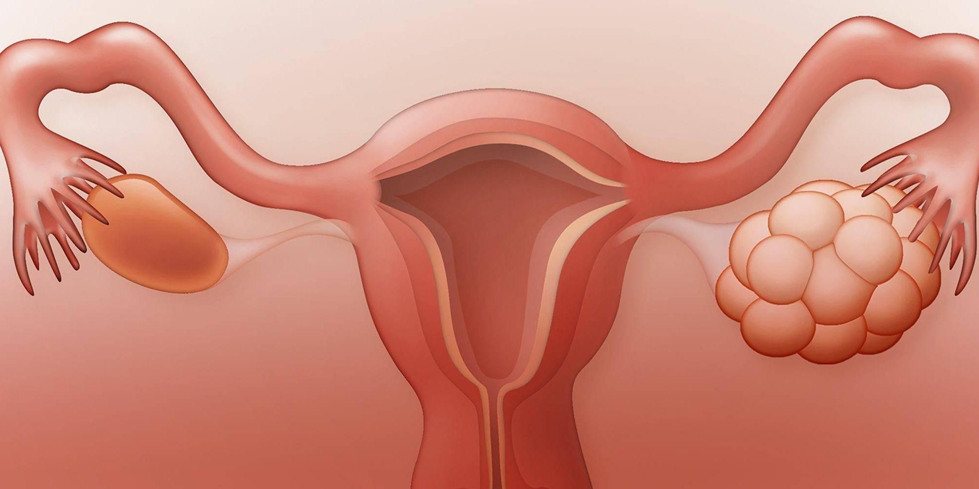 Что такое кистозные изменения яичников