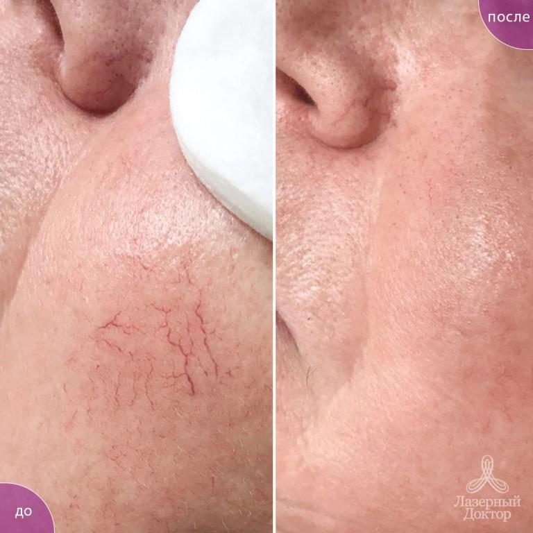 Лечение купероза лица: отзывы о лазере и других способах