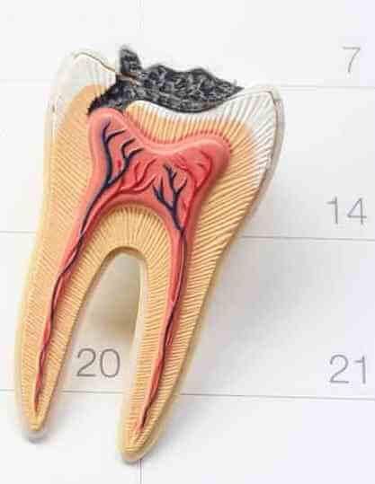 Как правильно убить зубной нерв в домашних