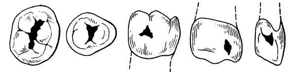 Классификация кариеса по блэку: схемы поражения и описание
