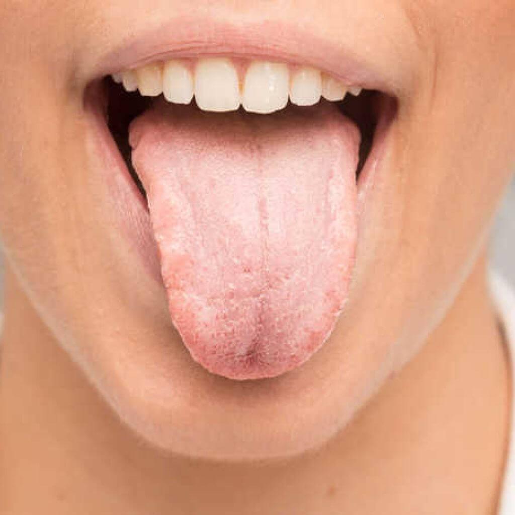 Заболевания полости рта и языка: виды патологий и способы их лечения