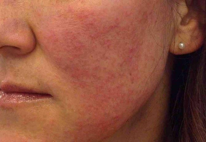 Красные пятна на лице: устранение причин, медикаментозное лечение, народные средства