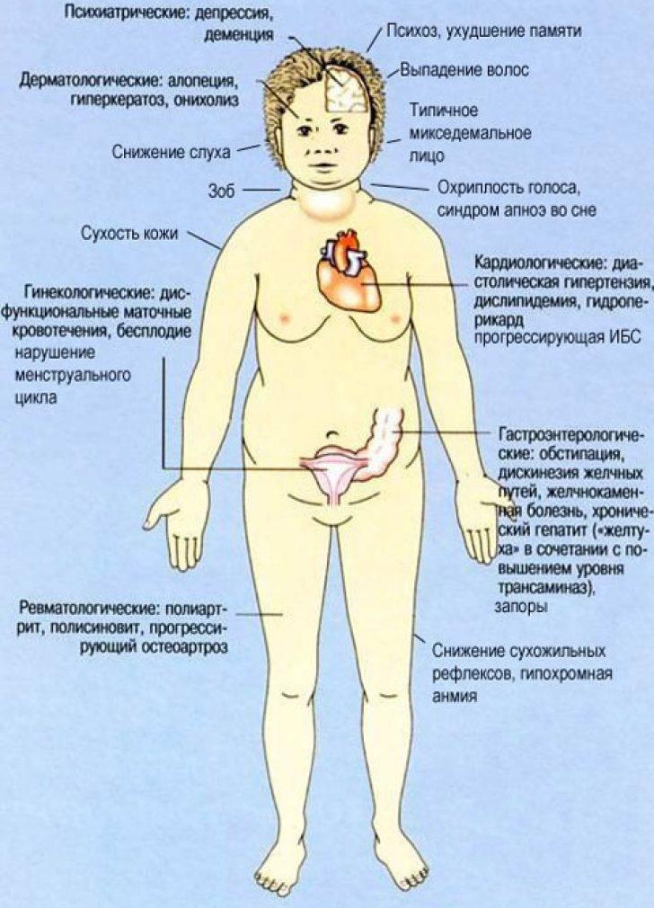 Аутоиммунные заболевания. типы, причины и симптомы