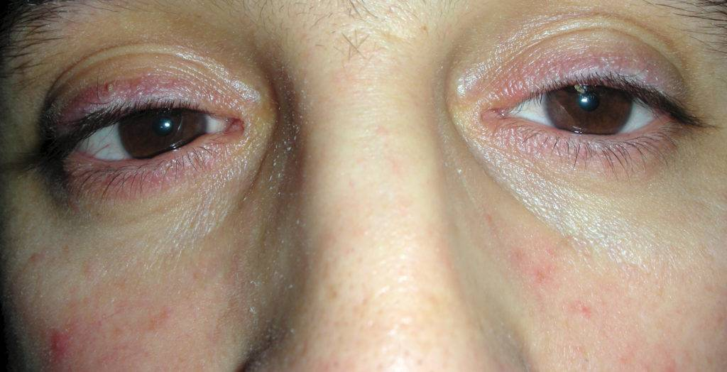 Воспалился глаз – чем лечить в домашних условиях, что делать, как снять