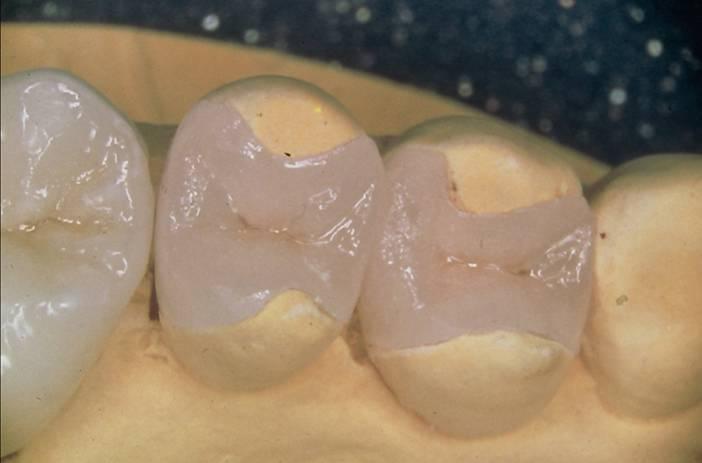 Выбираем, какие протезы лучше: пластмассовые или керамические, как правильно поставить жевательные зубы?