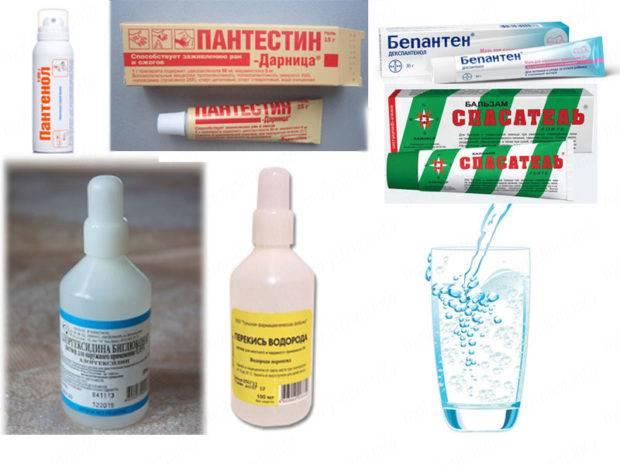 Мазь от ожогов: список наиболее эффективных препаратов