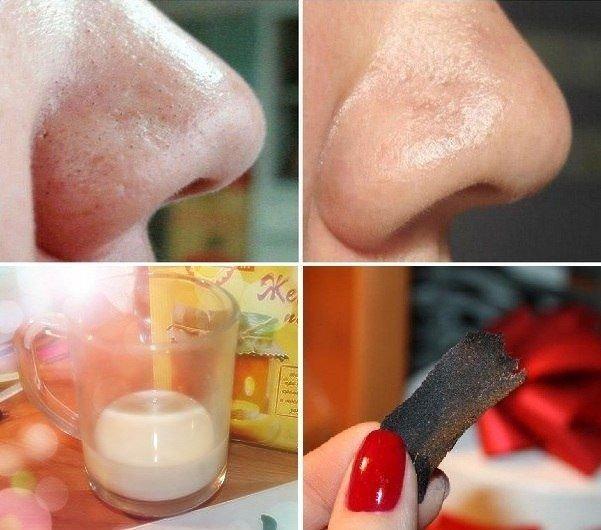 Как приготовить яичную маску для лица от черных точек?